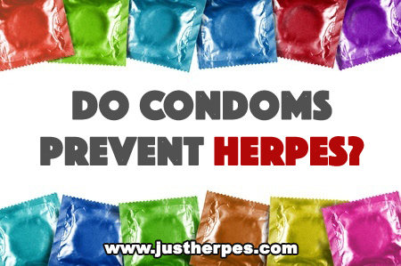 Do Condoms Prevent Herpes?